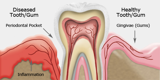 Gum Treatment