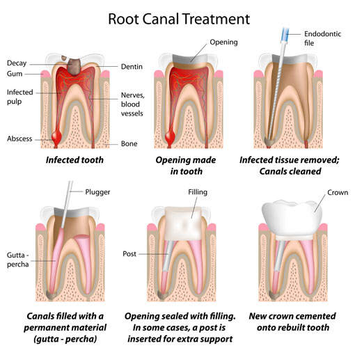 Root Canal Treatment Process